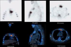 Thoracic-focused Tc-99 bone gammagram and low dose PET/CT showing tracer uptake compatible with sternal osteomyelitis.