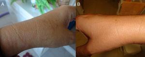 Detalle de máculas hipocrómicas de borde eritematoso simétricas en ambas muñecas (año y medio de evolución). A) Mácula en muñeca izquierda. B) Mácula en muñeca derecha.