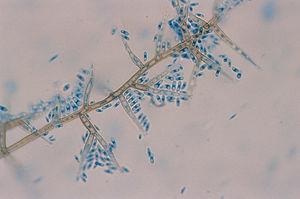 Examen microscópico con azul de lactofenol (×400). Células conidiógenas con collaretes en forma de embudo y conidias cilíndricas.