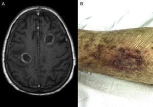 Magnetic resonance imaging of the brain (A) and cutaneous lesions (B) noted in patient's left thigh.