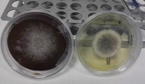 Agar (left) and Sabouraud agar (right) cultures reverse showing gray-black colonies of Scedosporium apiospermum.