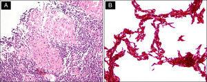 """Histological and microbiological features. (A) Tissue biopsy showed caseating granulomas. (B) Cultures of mycobacterium (Ziehl-Neelsen stain), M. tuberculosis smear from MGIT media showing """"cord formation""""."""
