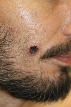 Lesión ulcerada con centro necrótico en la mejilla derecha.