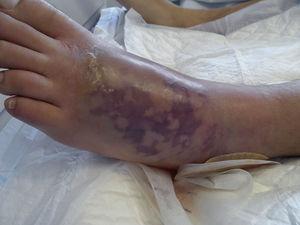 Lesión del pie izquierdo con desarrollo de livedo reticularis.