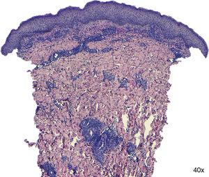 Histopathologic examination revealed only mild dermoepidermal edema and a mixed infiltrate on the dermis without granulomas.