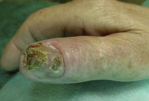 Placa hiperqueratósica que compromete la totalidad del lecho ungueal del primer dedo de la mano derecha.