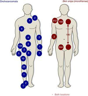 Distribution of onchocercomata and skin snips.