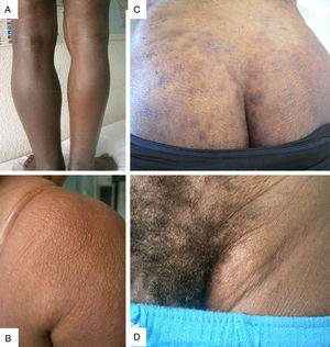 Representative clinical pictures of onchocerciasis (A) sowda and lymphedema; (B) orange skin; (C) chronic papular onchodermatitis (CPOD); (D) haning groin.