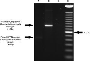 Detection of the Swedish nvCT in clinical samples by PCR. The image shows the PCR results used to determine the presence of 377bp deletions in the C. trachomatis cryptic plasmid. Well (A), indicates the presence of a 365bp product, which is associated with the reported 377bp deletion.2 Well (B), shows the presence of a 742bp product obtained from C. trachomatis with no plasmid deletion (plasmid DNA from C. trachomatis ATCC® VR-902B), Well (C), is the negative control (HeLa cell DNA), and Well (D) a 100bp DNA ladder (Invitrogen, CA, USA).