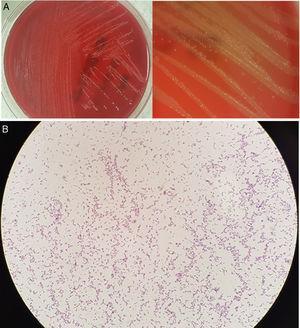 A) Cultivo en agar Wilkins-Chalgren. B) Tinción de Gram.
