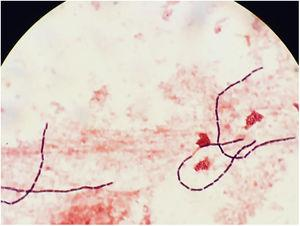 Gram stain of anaerobic blood culture (1000×): Gram positive long and straight-ended bacilli.