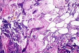 Tinción con H-E. Se muestra una gran hifa no tabicada y gruesa.