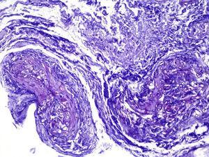 Tinción con PAS. Se identifican múltiples estructuras tubulares PAS-positivas atravesando la pared de un vaso sanguíneo.