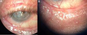 A) Párpado superior con ausencia de collaretes en las pestañas. B) Párpado inferior con madarosis y ausencia de secreciones.