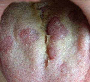 Lesión característica en lengua en paciente con secundarismo sifilítico.