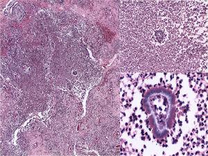 Histopatología: granuloma supurativo, con la presencia de granos arriñonados basófilos y clavas en periferia. (H&E, 10, 20 y ×40).