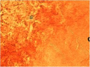 Skin scraping direct microscopic examination showing hyphae and thick-walled arthroconidia in formation (KOH mount, 60×).