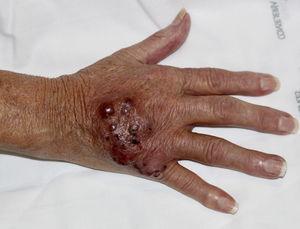 Placa eritematosa con nódulos violáceos coalescentes en el dorso de la mano derecha de la paciente, que coincidía con la zona en la que se había canalizado de forma traumática una vía periférica semanas antes.