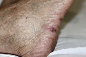 Nódulo violáceo sobre base eritematosa en la cara lateral del pie derecho.