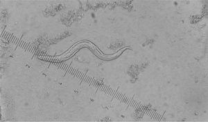 Larva rabditoide de Strongyloides stercoralis en heces. Examen en fresco MIF (mertiolato, yodo y formaldehído). 40x.