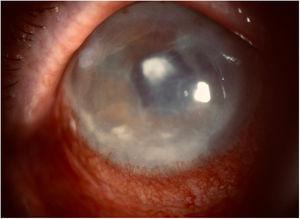 Leucoma central tras absceso y edema estromal y endotelial por queratopatía bullosa.