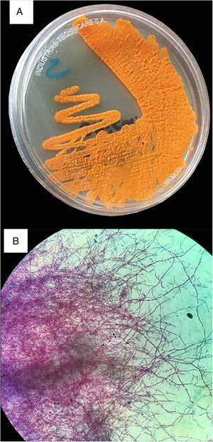Culture and Kinyoun stain of Nocardia farcinica. (A) Sabouraud Dextrose Agar. The colonial morphology is variable, here displayed pigment-producing orange colonies. (B) Kinyoun Stain, X100. Branching filamentous rods that are partially acid fast.