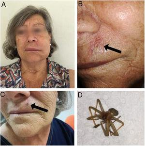 Clinical features and Loxosceles rufescens specimen. (A) Left facial asymmetric oedema 6h after spider bite. (B) Pale plaque (arrow) 24h after spider bite. (C) Necrotic eschar (arrow) 7 days after spider bite. (D) L. rufescens.