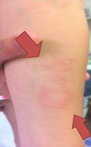 Lesión cutánea: anular, eritematosa, con borde sobreelevado y centro hipopigmentado.