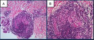 Anatomía patológica de la biopsia cutánea. Inflamación crónica y granulomatosa con presencia de células gigante y corona linfocitaria densa periférica de distribución perivascular, perianexial y perineural. Hematoxilina-eosina ×10 (A) y ×20 (B).