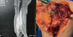 A) TC que muestra colección adosada al fémur con pared hipervascularizada y sin estructuras sólidas en su interior. B) Imagen de la cirugía donde se muestra la lesión producida tras desbridamiento.