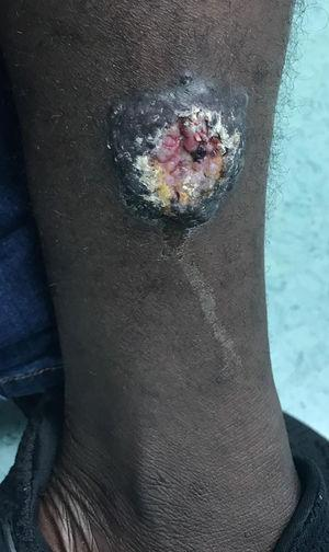 Lesión nodular de 35×40 mm ulcerada en el centro, zona pretibial de la pierna izquierda.