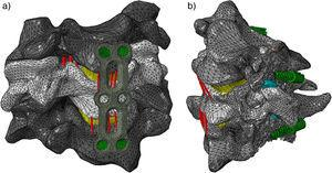 a) Fusão cervical anterior; b) fusão cervical posterior.