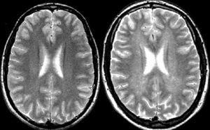 Resonancia magnética cerebral. Secuencias ponderadas en T2 obtenidas en el plano transversal en un sujeto sano (izquierda) y en un paciente con esclerosis múltiple (EM) (derecha). Obsérvese la discreta hiperseñal difusa que muestra la sustancia blanca hemisférica en el paciente con EM (dirty white matter).