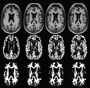 Segmentación automática regional cerebral. A partir de secuencias T1 (fila superior) se aplican estos programas que permiten obtener un análisis volumétrico selectivo de la sustancia gris (fila central) y de la sustancia blanca (fila inferior).