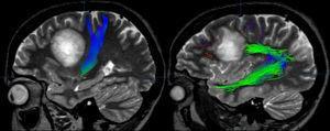 Tractografía por RM realizada en un paciente diagnosticado de una lesión desmielinizante seudotumoral frontal izquierda que producía una interrupción de las fibras del fascículo arcuato (imagen derecha), pero no afectaba la vía corticoespinal (imagen izquierda). El paciente presentaba una afasia de conducción, sin déficit motor.