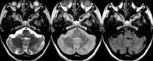 Resonancia magnética cerebral. Secuencias ponderadas en T2 (izquierda), densidad protónica (centro) y fast-FLAIR (derecha) en el plano transversal en un paciente con esclerosis múltiple clínicamente definida. Se observan múltiples y pequeñas lesiones desmielinizantes, muchas de ellas no visibles en la secuencia fast-FLAIR.