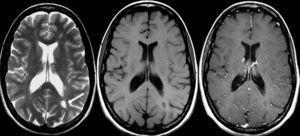 Resonancia magnética cerebral. Secuencias ponderadas en T2 (izquierda), T1 (centro) y T1 con contraste (derecha) en el plano transversal en un paciente con esclerosis múltiple secundariamente progresiva. Obsérvese la lesión desmielinizante subcortical posterior en el hemisferio cerebral izquierdo (flecha), la cual muestra un anillo hiperintenso en la secuencia T1 con contraste. Esta lesión no se realza con el contraste.