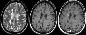 Resonancia magnética cerebral. Secuencias ponderadas en T2 (izquierda), T1 (centro) y T1 con contraste (derecha) en el plano transversal en un paciente con esclerosis múltiple secundariamente progresiva. Obsérvese como muchas de las lesiones visibles en las secuencias T2 son hipointensas en las secuencias T1, sin mostrar realce tras la administración de contraste (agujeros negros irreversibles).