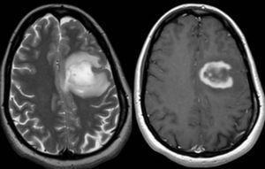 Resonancia magnética cerebral. Secuencias ponderadas en T2 (izquierda) y T1 con contraste (derecha) en el plano transversal en un paciente con una lesión seudotumoral de origen desmielinizante. Obsérvese que la lesión muestra un realce en anillo incompleto con su margen abierto en contacto con la sustancia gris cortical (cortesía de la Dra. Marzo).