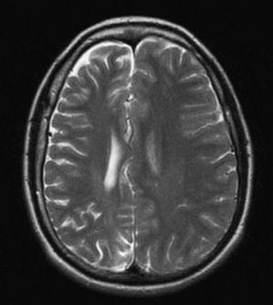 Resonancia magnética cerebral, plano axial, en secuencia T2: se evidencia una atrofia general de todo el hemisferio cerebral derecho con dilatación del ventrículo homolateral en ausencia de lesiones vasculares.