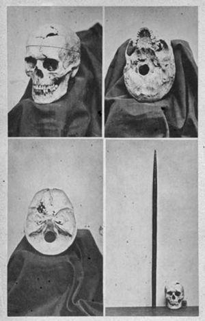 Fotomontaje que muestra cuatro vistas del cráneo de Phineas Gage (catálogo descriptivo del Warren Anatomical Museum, 187016).