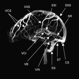 Anatomía normal de los principales senos venosos en imagen por resonancia magnética en fase venosa. CS: confluencia de los senos (presa de Herófilo)&#59; VAI: vena anastomótica inferior (de Labbé)&#59; VAS: vena anastomótica superior (de Trolard)&#59; VB: vena basal (de Rosenthal)&#59; VCI: vena cerebral interna (de Galeno)&#59; VCS: venas cerebrales superficiales&#59; SR: seno recto&#59;SS: seno sigmoideo&#59; SSI: seno sagital inferior&#59; SSS: seno sagital superior&#59; ST: seno transverso o lateral.