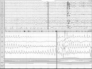 Apnea obstructiva. Registro polisomnográfico realizado dentro de las primeras 24 horas de un paciente que ingresa con una hemorragia intracerebral en los ganglios basales, en el que se objetivan frecuentes apneas obstructivas. La línea gris relaciona el evento respiratorio con el inicio de un microdespertar en la señal de EEG.