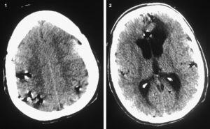 Imágenes de densidad aérea multifocales dispersas por el espacio subaracnoideo de ambos hemisferios cerebrales.