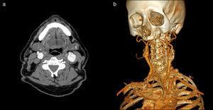 AngioTC cervical. Corte axial en lado izquierdo (a) y su reconstrucción en 3D en lado derecho (b), donde se demuestra la existencia de aneurisma carotídeo izquierdo.