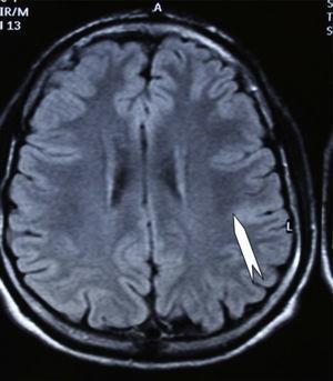 Caso 2. El corte coronal de la RM en FLAIR muestra una pequeña DCF en forma de hiperseñal cortical (punta de flecha) en zona rolándica izquierda.