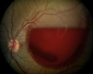 Hemorragia subhialoidea de grandes dimensiones en el ojo izquierdo tras la exploración de fondo de ojo.