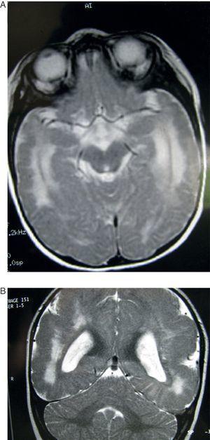 Caso 5. Paciente de 6 meses. A) Corte axial de la RM a la altura de la base cerebral mostrando amplia zona de hiperseñal en sustancia blanca de ambos hemisferios. B) Corte coronal del mismo estudio en T2. Se observan alteraciones corticales e hiperseñalización difusa de la sustancia blanca, con predominio en zonas posteriores y anteriores del cerebro.