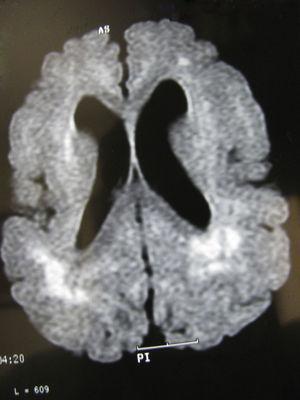 Mismo paciente de las figuras 3 y 4 a los 2 años y medio. El corte axial de la RM en T1 muestra alteraciones corticales similares a las observadas a los 6 meses y 1 años, apareciendo las zonas de hiperseñal más concentradas en diversas áreas, especialmente en las posteriores.