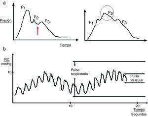 a) Detalle de la onda cardíaca de la presión intracraneal (PIC). En la gráfica de la izquierda se puede observar un registro no patológico&#59; la flecha indica la hendidura dícrota. En la gráfica de la derecha destaca cómo la onda P2 se acentúa en situaciones de baja distensibilidad. b) Patrón ondulatorio de la onda de PIC.
